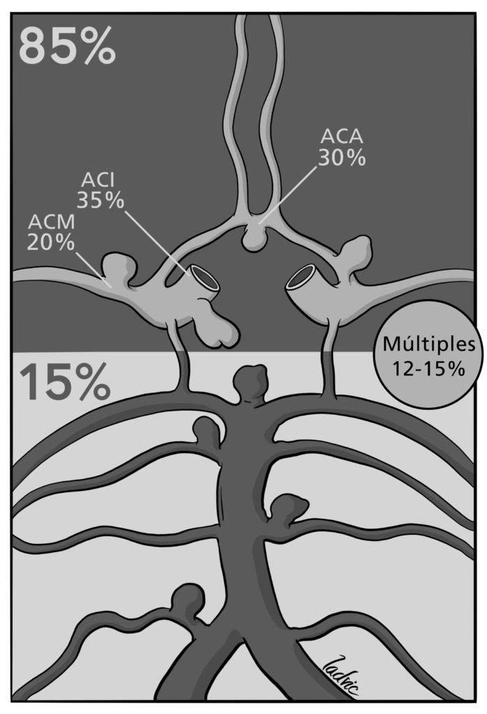 Circle of Willis and aneuryms location.