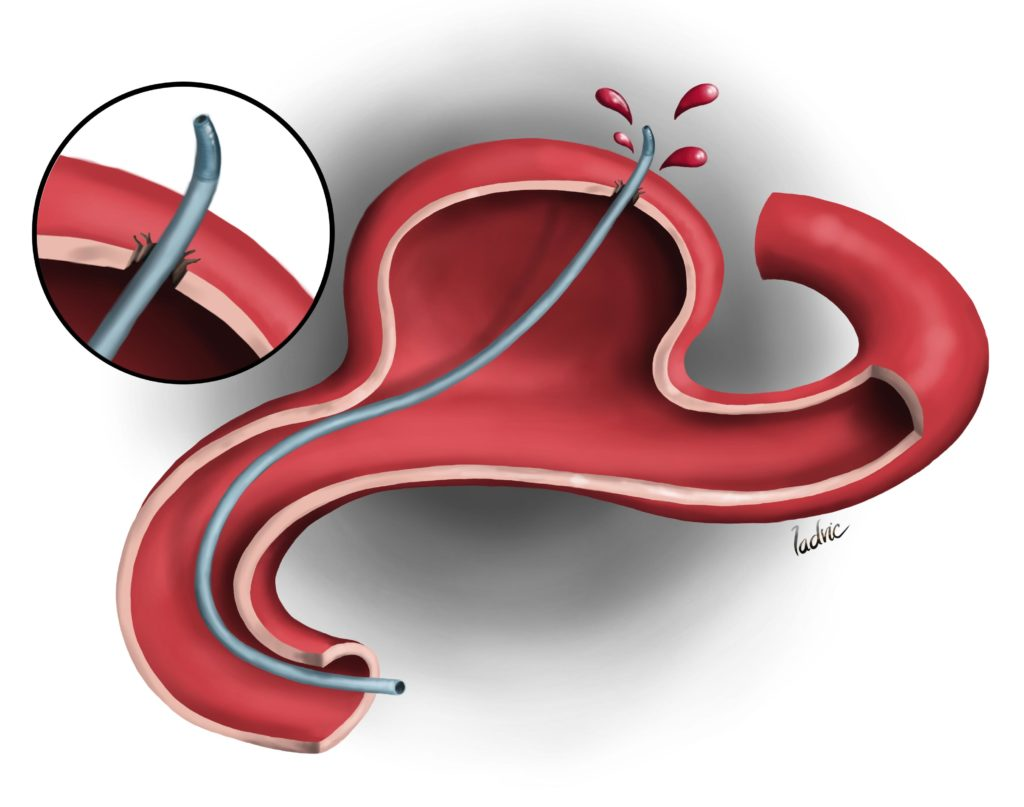 """Neurointerventionism aneurysm coiling complications. Illustration made for a presentation about """"Complications during brain aneurysm coiling""""."""