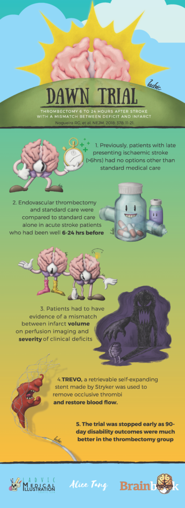 DAWN Trial infographic. Illustrations for an infographic about thrombectomy.
