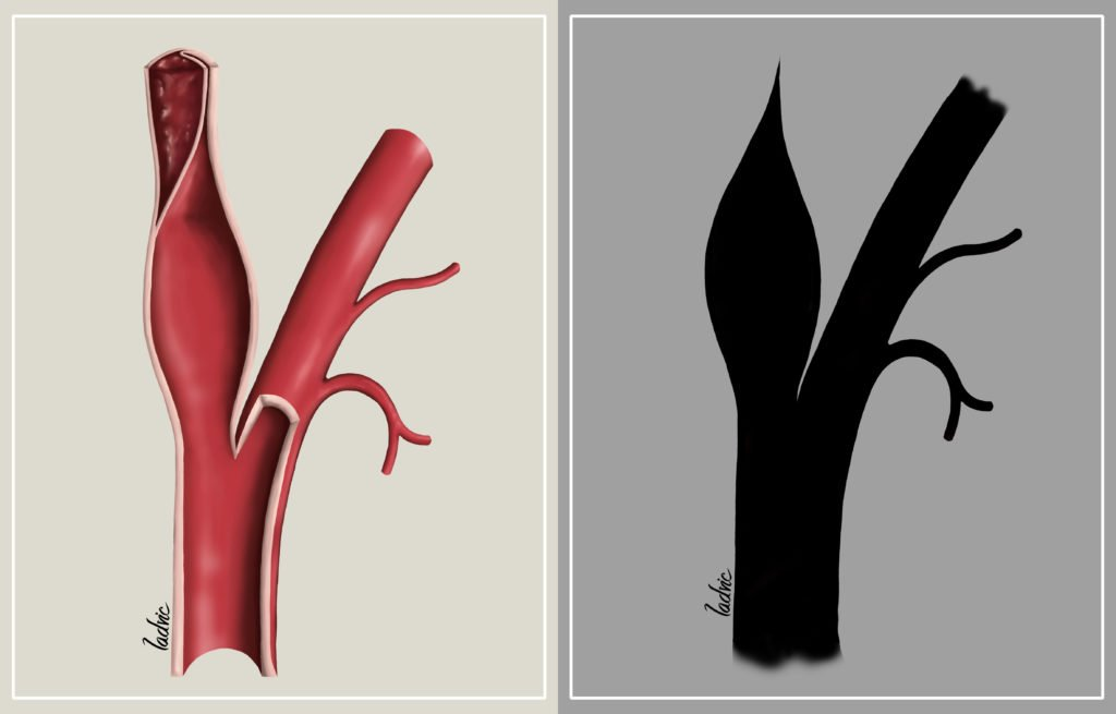 Imaging for an article about acute cerebral infarction, illustrating different types of carotid occlusion.
