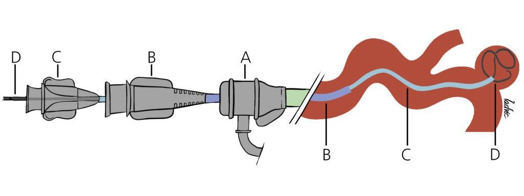 Endovascular aneurysm embolization technique.