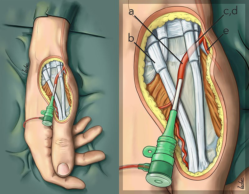 Distal transradial vascular access. Illustrations made for a paper.