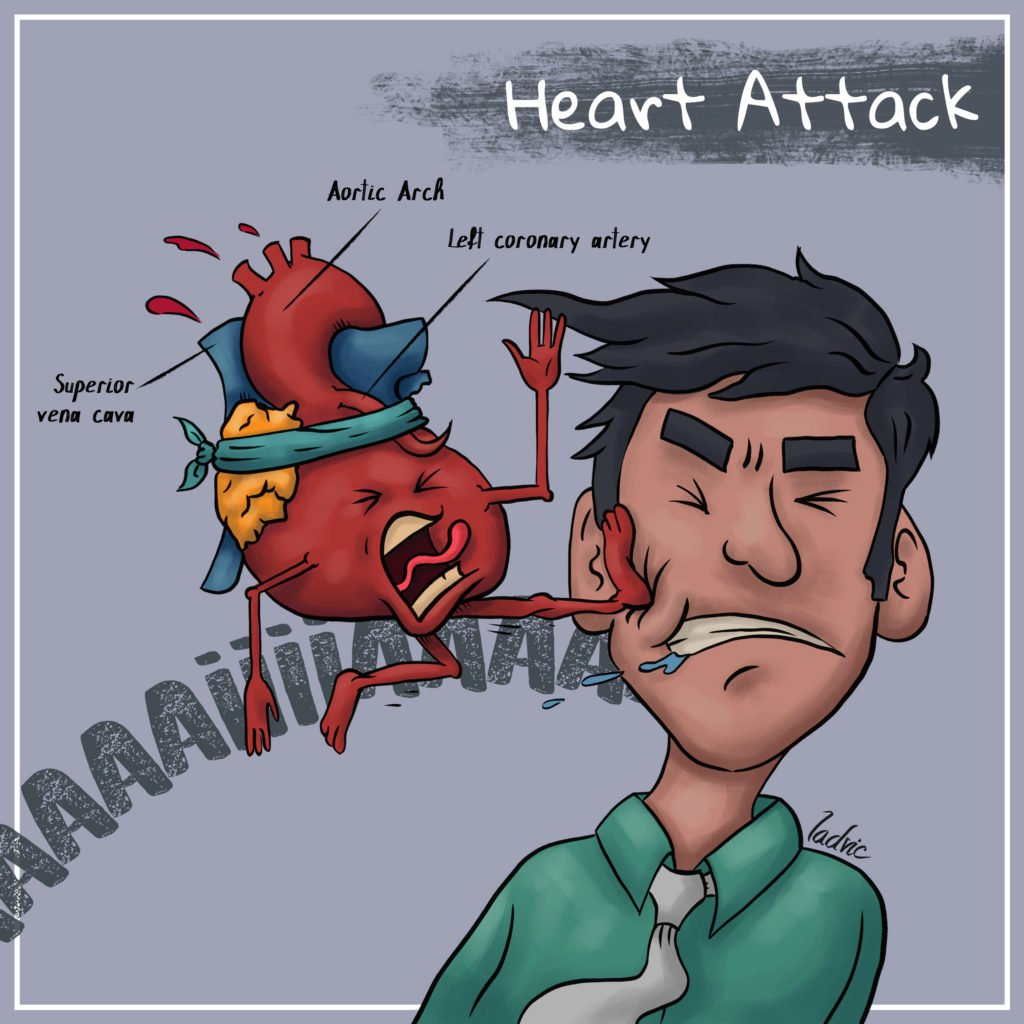 Heart Attack Cartoon.