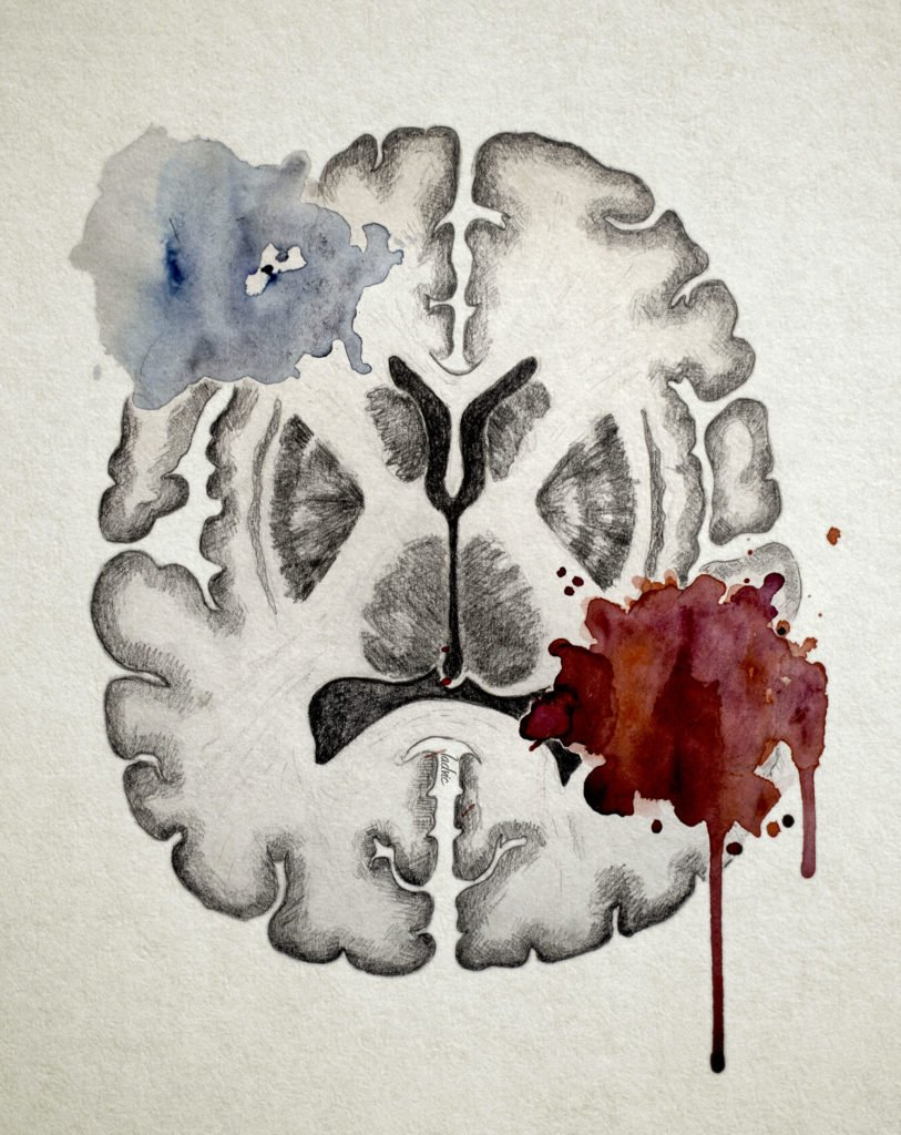 Image for Stroke Awareness. Traditional drawing (graphite and watercolor).
