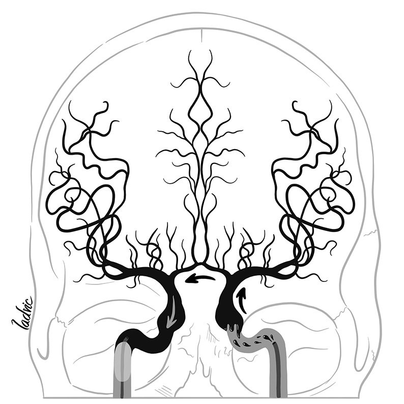 Illustration for a presentation about balloon test occlusion of internal carotid artery.