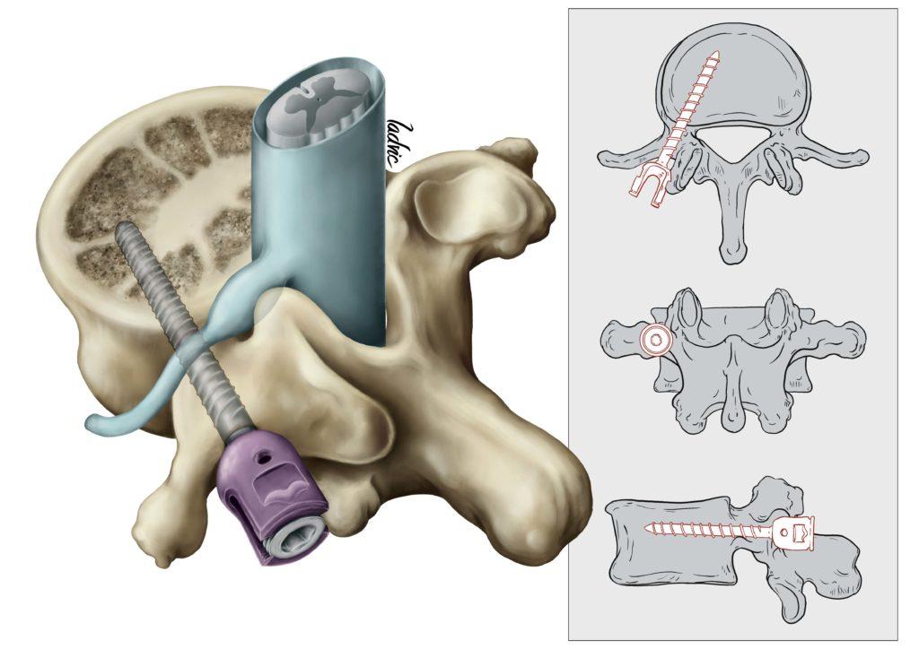 Transpedicular screw fixation technique. Transpedicular screw position.